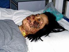 高蓉蓉2004年5月7日被酷刑折磨,脸上是电烧灼伤。照片是受伤10天后拍摄的。