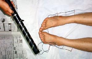 中共酷刑示意图:用电针电击