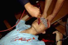 酷刑演示:插管灌食