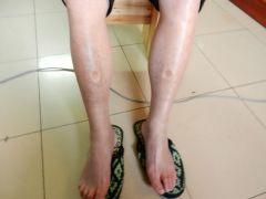 恶人常用硬物敲打卢启奇的小腿胫骨,以致四个多月后,卢启奇的小腿胫骨仍有瘀血肿胀。