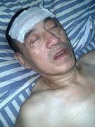 昏迷在床的李洪奎