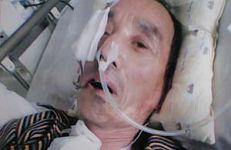 李德成被大连南关岭监狱迫害的左侧脸已萎缩,左眼塌陷失明,腿部严重受伤
