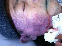 陈百合去世时脸部都变成了青紫色