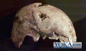 希特勒的头盖骨,上有自杀时的手枪弹孔(网络图片)