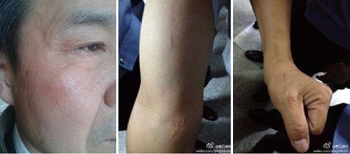 '程海律师被打后身体上的伤痕'