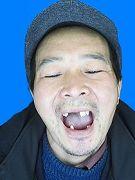 因遭酷刑迫害二零一二年二月三日冤狱期满回家后牙齿只剩下六个