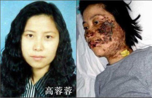 法輪功學員高蓉蓉被中共警察電擊前後對比照片。