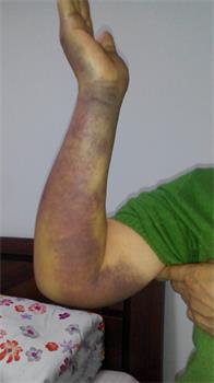 高国庆的妻子被扭伤的手臂