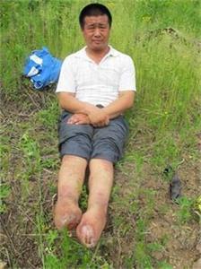 '王新春被迫害致残、失去双脚'
