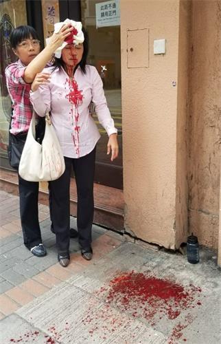 '图:二零一九年九月二十四日下午约四点左右,法轮功学员廖秋兰在长沙湾警署附近被袭击,头部受伤。'