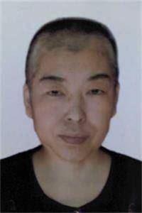 '李国俊被迫害化疗后的照片'