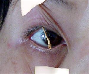'酷刑演示:用扫帚棒支起眼皮,不让睡觉'