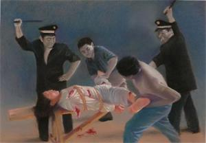 '酷刑:打毒针