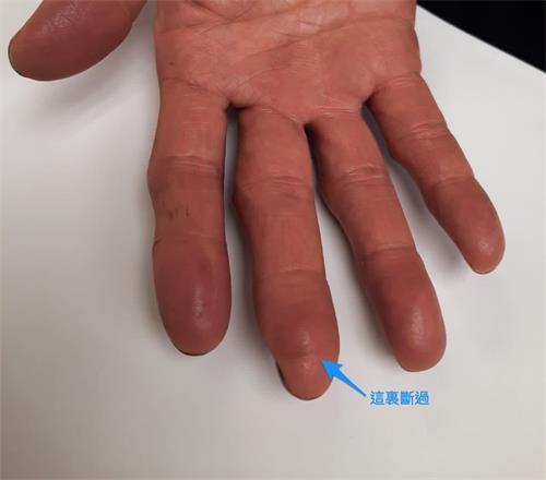 '图:曾被割断的手指完全长好了。'